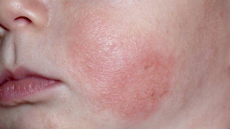 Trẻ bị chàm sữa xuất hiện các vùng da mẩn đỏ hoặc sẫm màu