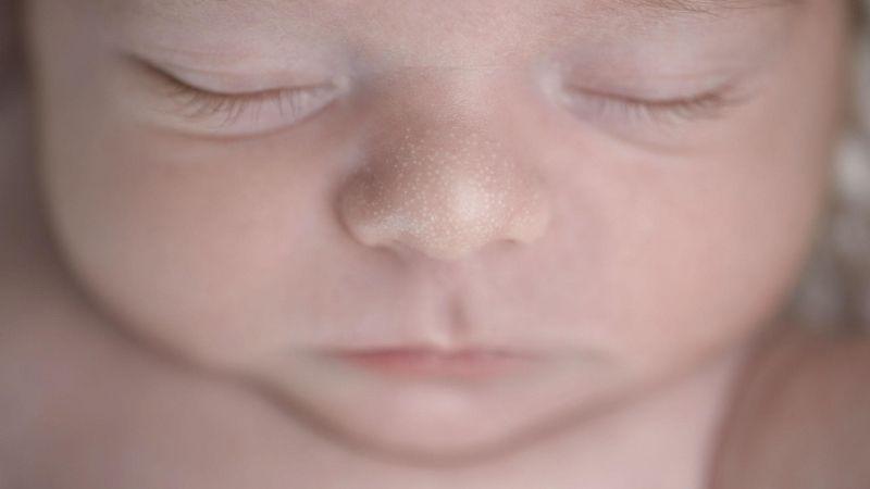 Mụn sữa ở trẻ sơ sinh là một chứng bệnh ngoài da thường gặp
