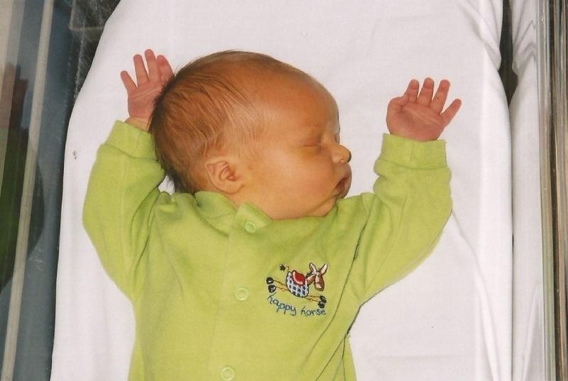 Có 2 loại vàng da ở trẻ sơ sinh: vàng da sinh lý, vàng da bệnh lý