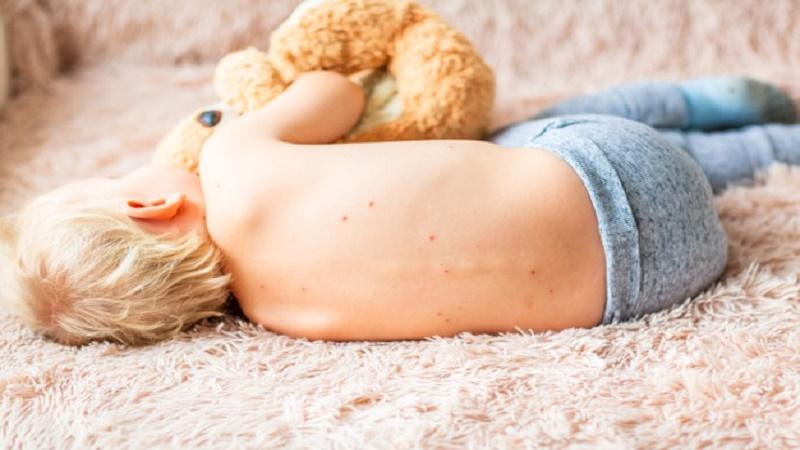 Bé 3 tuổi bị nổi mụn đầu trắng