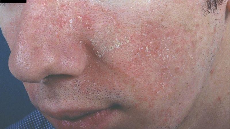 Viêm da tiết bã nhờn - viêm da tiết bã ở mặt, thân và nếp gấp da thường được điều trị bằng corticosteroid tại chỗ hoặc thuốc chống nấm.
