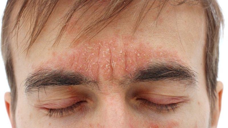 Ở nam giới viêm da tiết bã nhờn thường nặng hơn ở những vùng có lông trên mặt