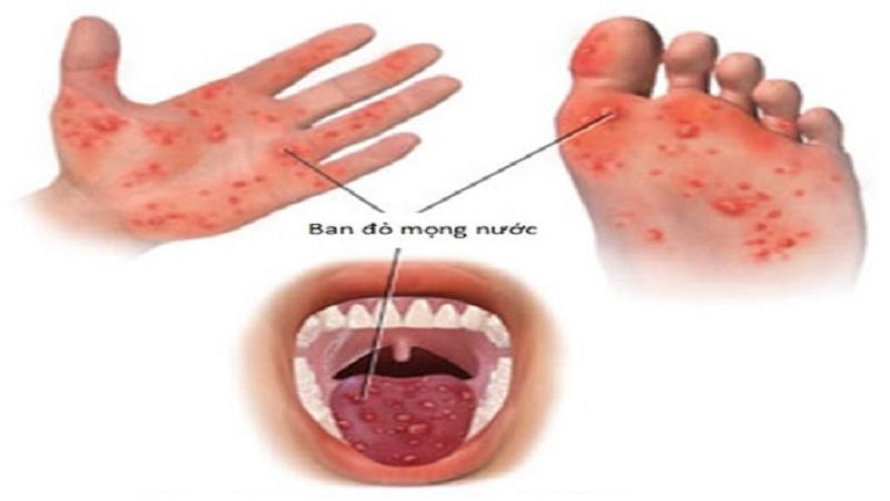 Tay chân miệnglà căn bệnh truyền nhiễm phổ biến do các loại virus khác nhau gây ra