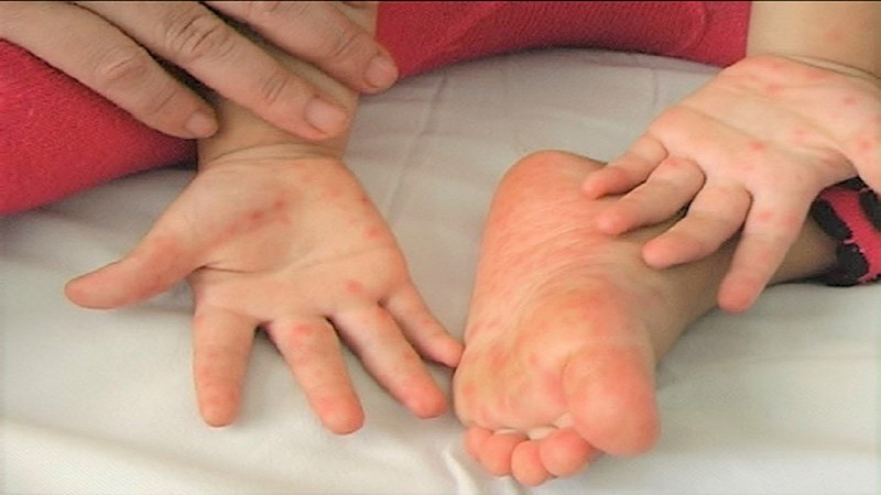 Bệnh chân tay miệng ở trẻ em cần kiêng gì?