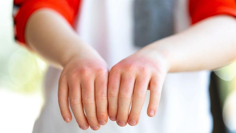 Dấu hiệu nhận biết trẻ bị viêm da cơ địa