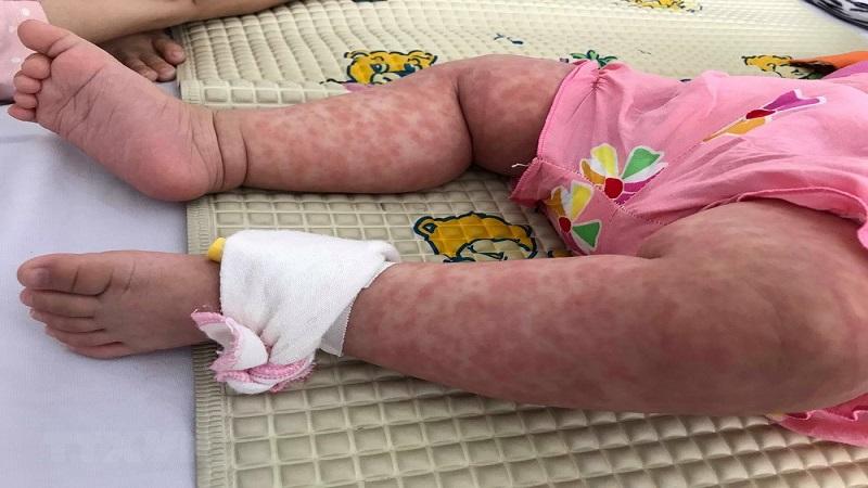 Phát ban sẽ lan dần xuống dưới vùng lưng, bụng, chân từ ngày thứ 2 đến ngày thứ 3